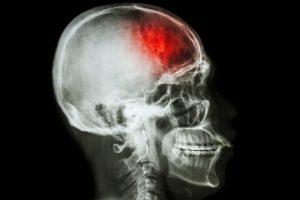Tomografia mostrando lesão no cérebro