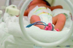 criança com prematuridade